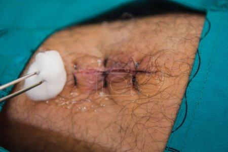 Photo pour Sutures dans les jambes des patients à l'hôpital . - image libre de droit