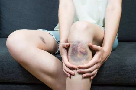 Bruise injury on young girl knee