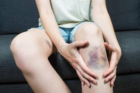 Bruise damage on young female knee