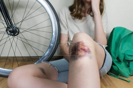 Young woman in casual street style clothes with bruised knee rests after bicycle accident