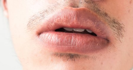 Closeup of lips man problem health care, Herpes simplex