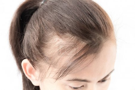 Woman serious hair loss problem