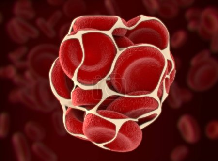 Blood clot model