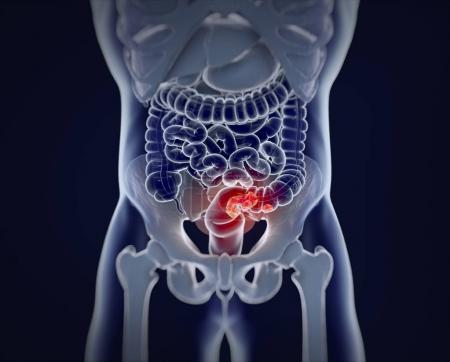 Colorectal cancer anatomy model