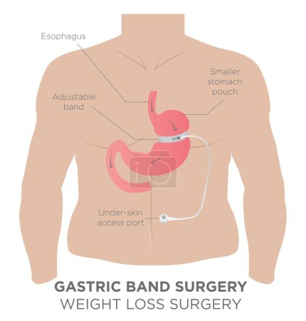 Gastric Band Weight Loss Surgery Medical Procedure...