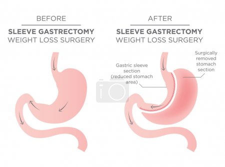 Stomach Staple Bariatric Surgery and Removal...