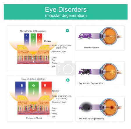Macular degeneration is a medical condition which ...