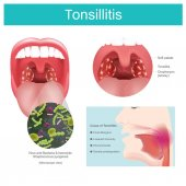 Tonsillitis  Inflammation of the soft tissue in the mouth and pain in swallowing occurs Caused by streptococcus bacterial infection including some viruses that causes redness and swelling in the throat and tonsils Pain in swallowing Illustration