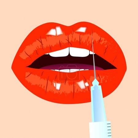 Illustration pour Lèvres et injection de botox. Des lèvres rouges. Concept beauté, illustration vectorielle . - image libre de droit