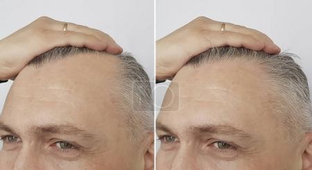 Photo pour Calvitie masculine avant et après - image libre de droit