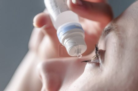 Closeup view of young woman applying eye drop, artificial tears. Cute girl suffering from an ophthalmological allergic reaction to pollen. Girl applying artificial tears sitting on a sofa in the living room at home. Close up view of young woman apply