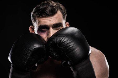 Boxer with black eye