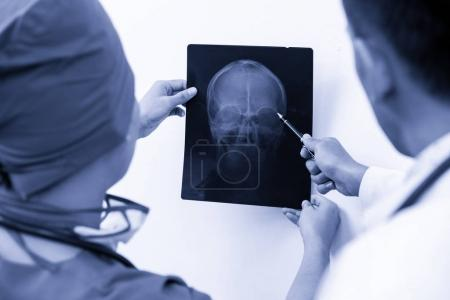 Photo for Doctor and surgeon examining x-ray film of patient 's head for brain, skull or eye injury. Medical diagnosis and surgical treatment concept. - Royalty Free Image